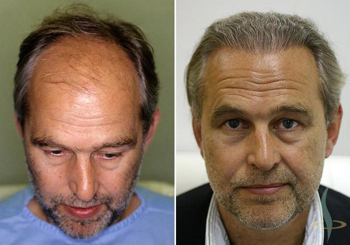اليسار: قبل / يمين: عمليات 3 8(إجمالي 2800 مطعمات