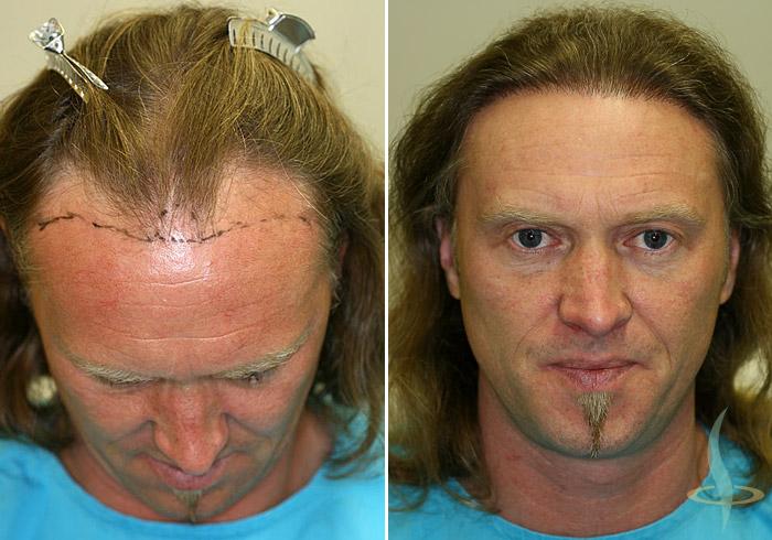 اليسار: قبل العملية الأولى / يمين: بعد عملية جراحية ثانية