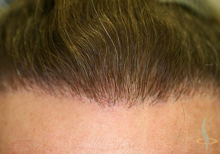 شعري بعد عملية جراحية ثانية