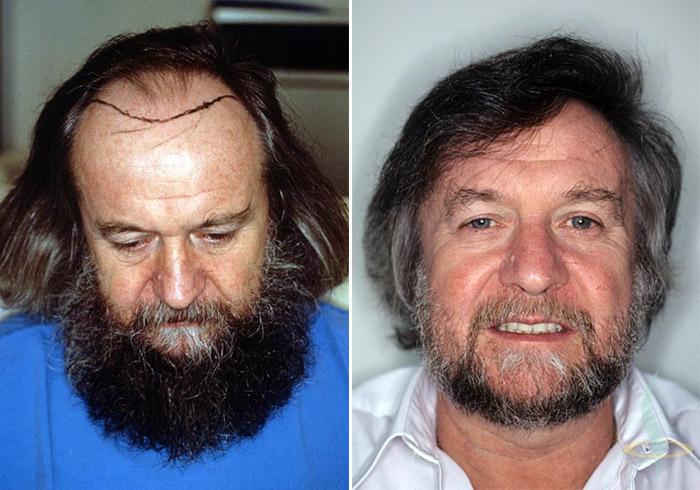 اليسار: قبل / يمين: سنة بعد العملية الثانية 1,5