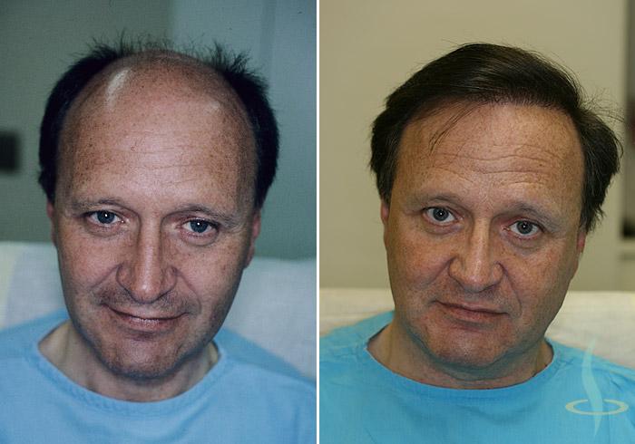 اليسار: قبل / يمين: أشعر بعد العملية