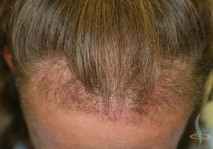 شعري بعد الجراحة الأولى