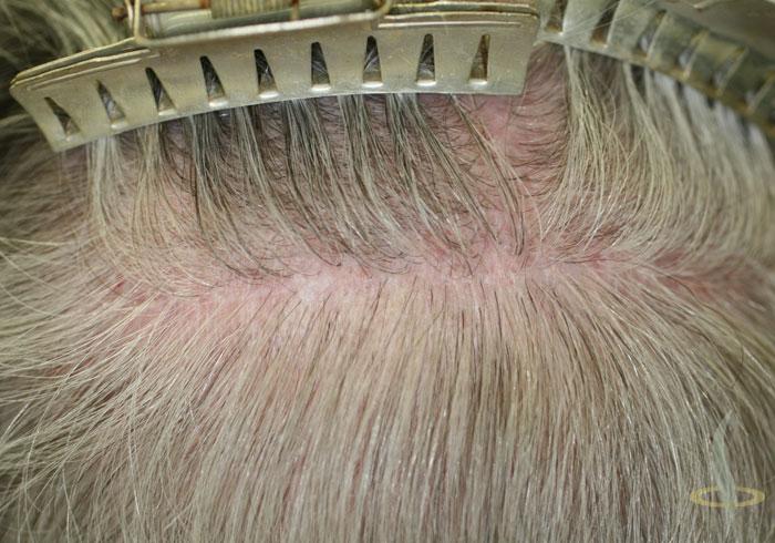 بداية نمو الشعر